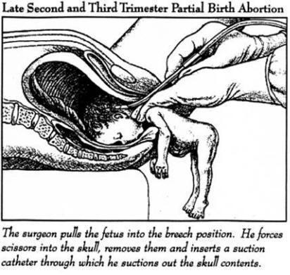 делать ли аборт